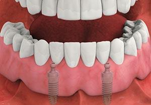 Dental Implant Overdenture | Very Nice Smile | Dentist Elmsford | Elmsford  Dental